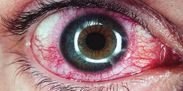 Вирусный увеит глаза