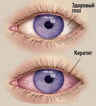 Заболевание глаз - кератит
