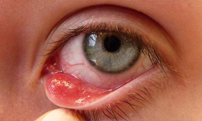 Заболевание глаз - ячмень