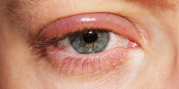 Вирусный блефарит глаза
