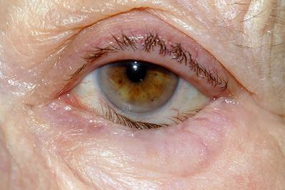 Глазное заболевание - заворот века