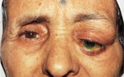 Заболевание глаз - дакриоаденит