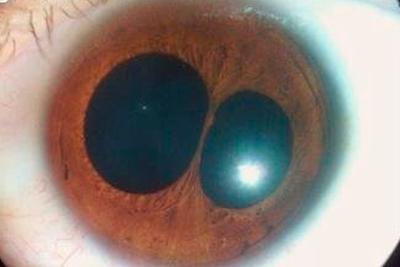 Заболевание глаз - поликория