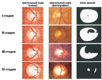 Глазные заболевания - атрофия нерва