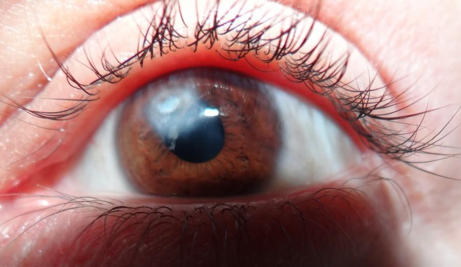 Заболевание глаз - бельмо
