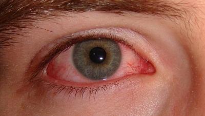 Заболевание глаз - эписклерит