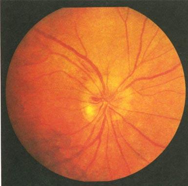 Глазные заболевания - ишемическая нейропатия
