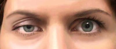 Глазное заболевание - птоз