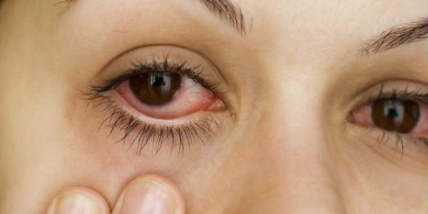 Причины развития воспалительного заболевания глаз